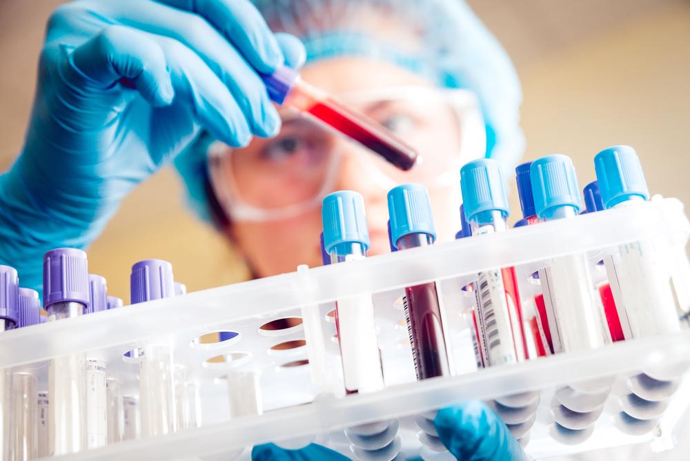 Vd-intervju Immunovia:»IMMray-plattformen har potential att radikalt förbättra cancerdiagnostiken«